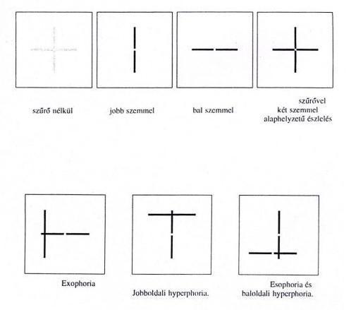 dioptriás szemvizsgálati diagram)