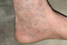 rövidlátás és lapos lábak)