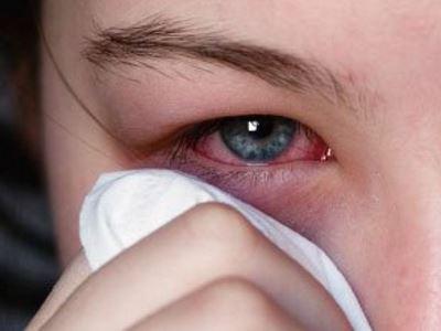 csökkent látás kötőhártya-gyulladással