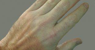 Fájdalom, zsibbadás és bizsergés - Vasculitis