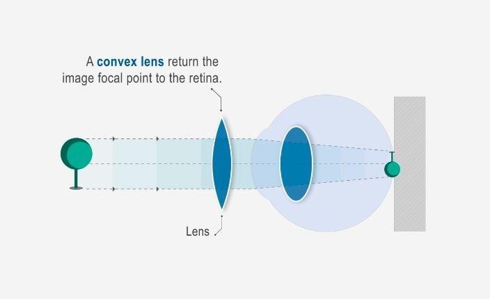 Hypermetropia/Hyperopia (távollátás) | Szemüvegvilág