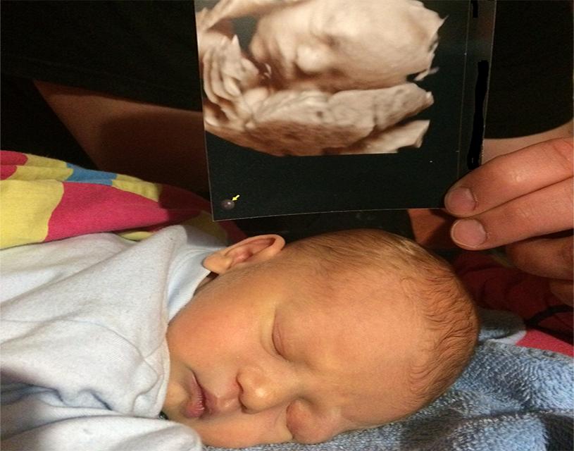 látásvesztés szülés közben)
