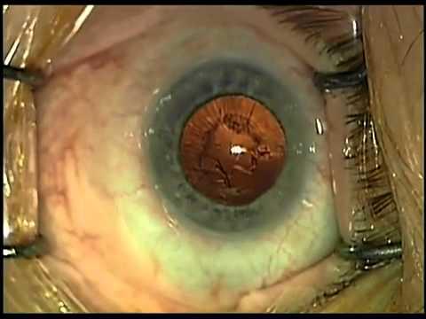 szürkehályog és látás helyreállítása