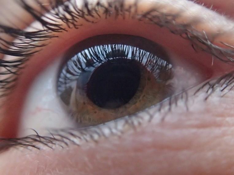 a bal szem látása romlik