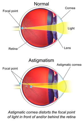 asztigmatizmus 100 látásnál