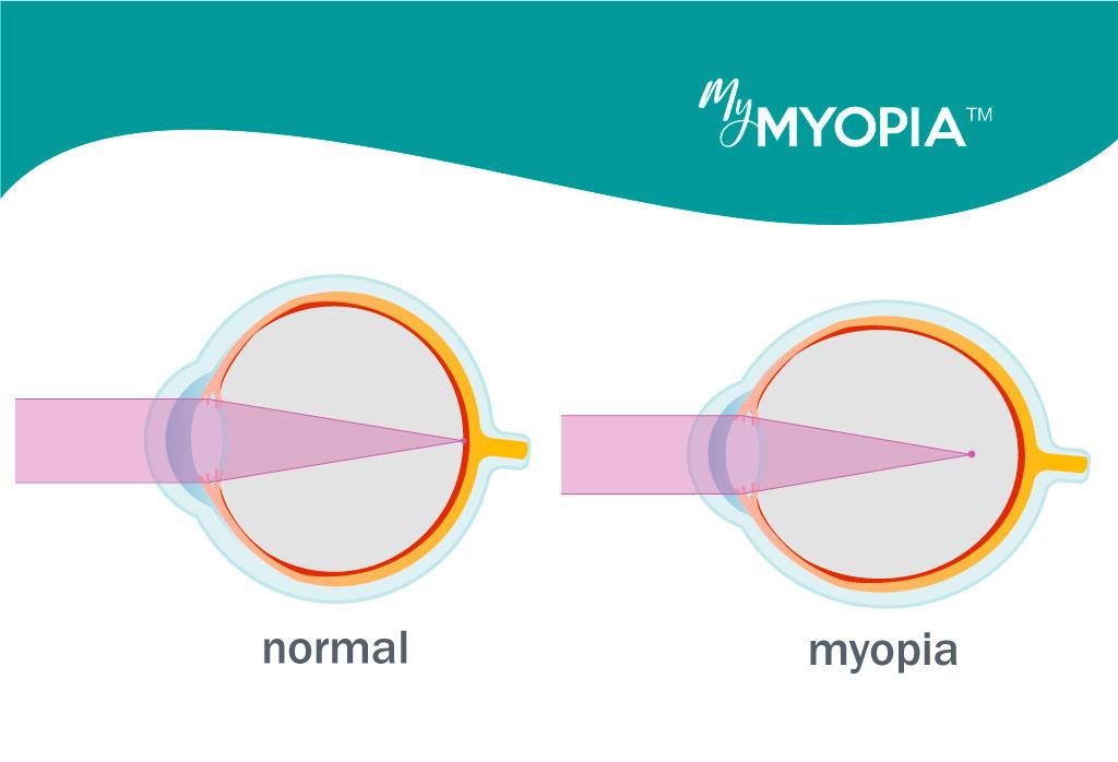 myopia hyperopia kép