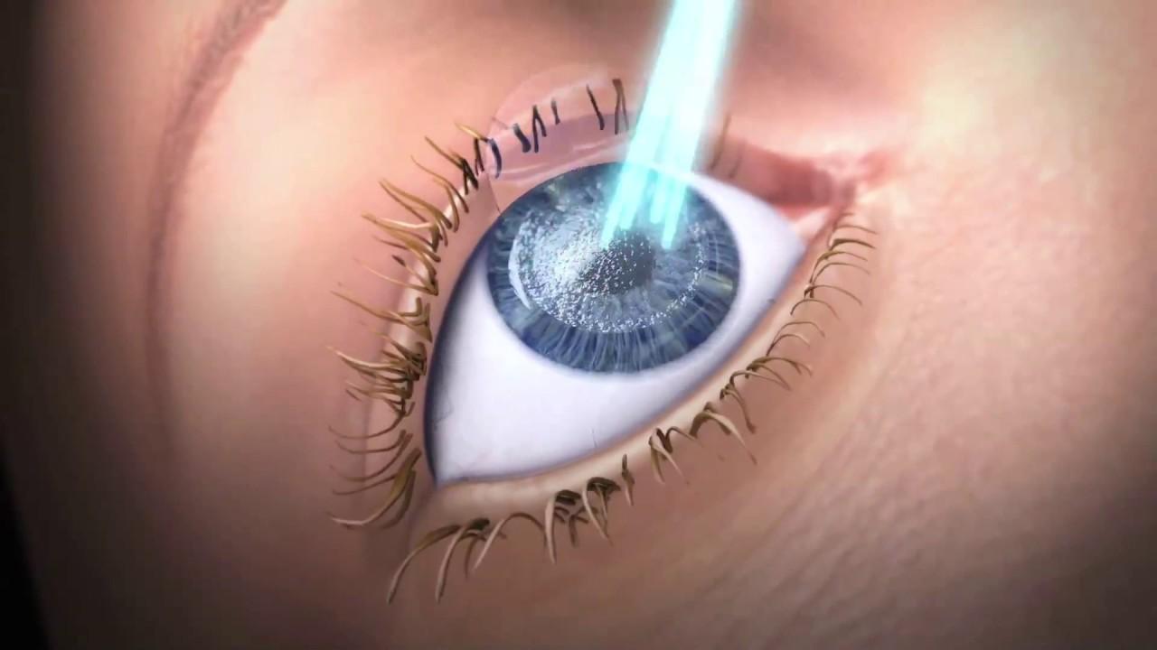 német szemészeti kezelés szaruhártya-átültetés)