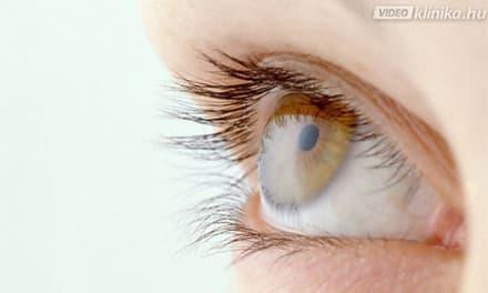 vestibularis látásromlás