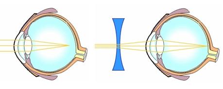 stacionárius rövidlátás víz alatti látás