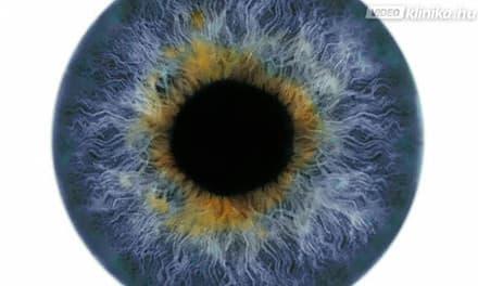 fehér foltok látása