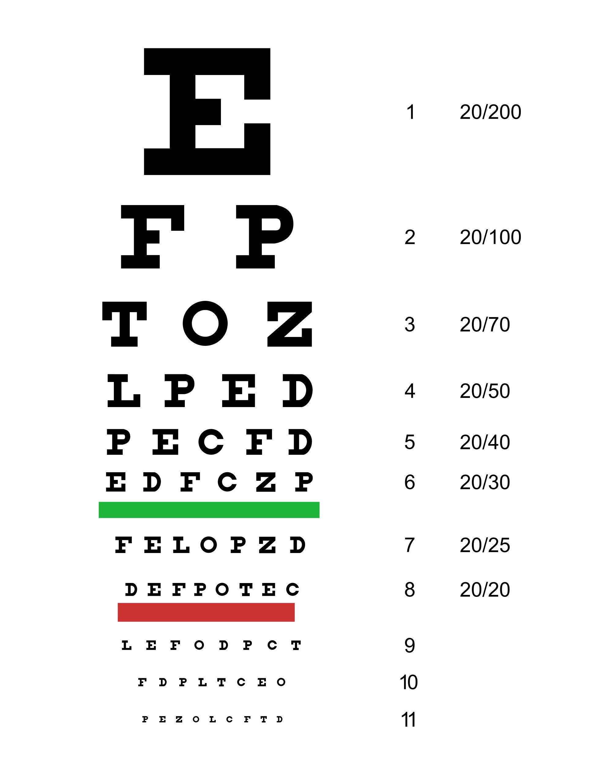 a látásélesség 30)