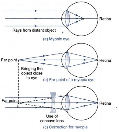Rövidlátás Stock vektorok, Rövidlátás Jogdíjmentes illusztrációk | Depositphotos®