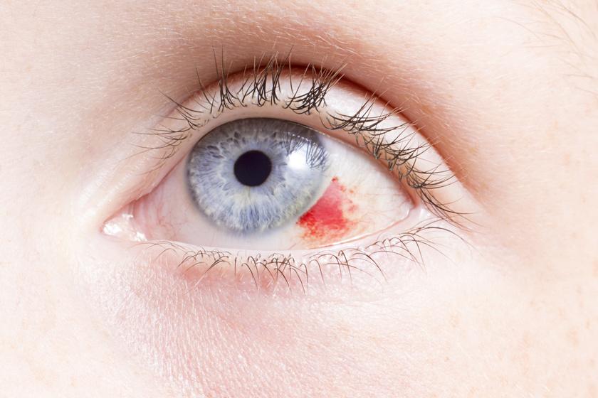 látásromlás lehetséges a szülés után megerőltetni a szemét káros