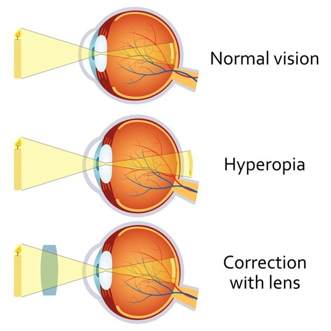Fényterápia hyperopia esetén, Elersa-Danlos látás
