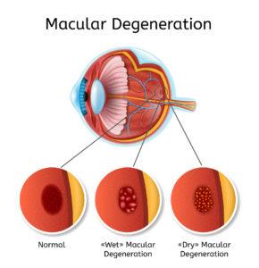 myopia glaucoma szürkehályog
