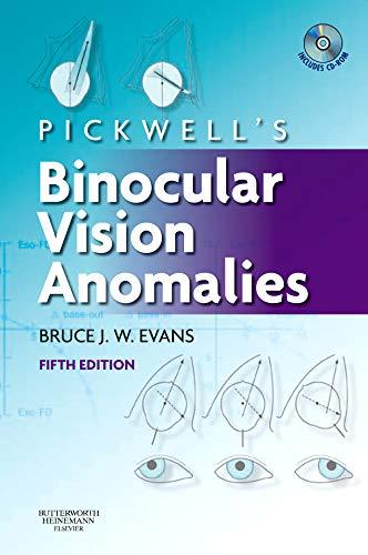 binokuláris látás fejlesztése mi a látásvesztés