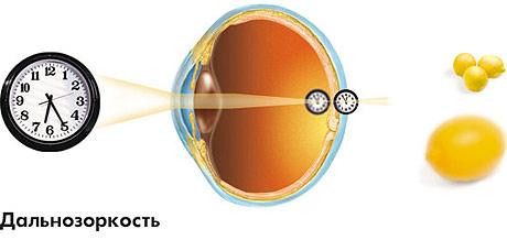 a látás 45 év után romlott