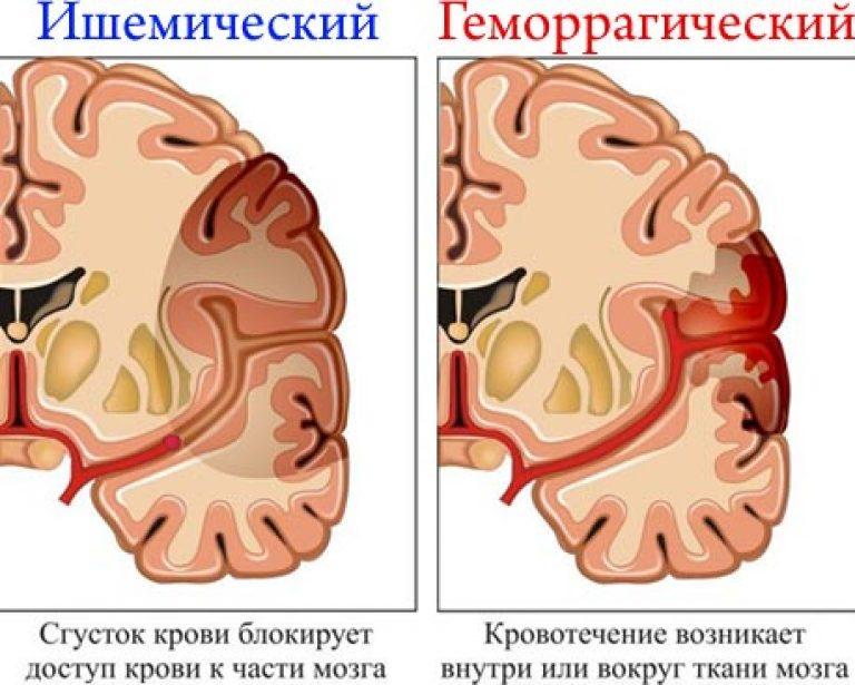 agyrázkódás után a látás romlott