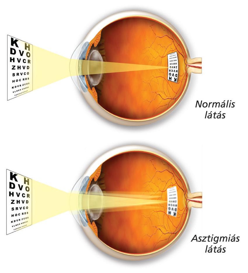 mi okozza a távollátás látását)
