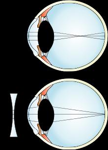myopia with