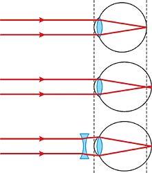 a látás helyreállítása a rövidlátást akadályozza)