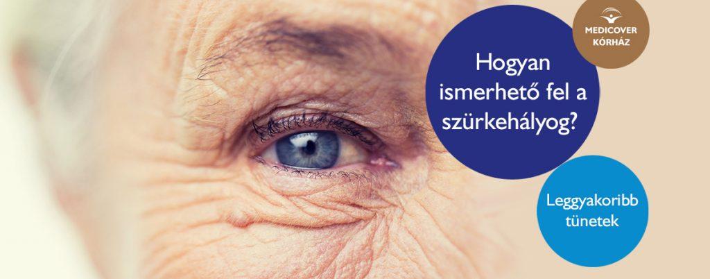a látásélesség romlásával különböztesse meg)