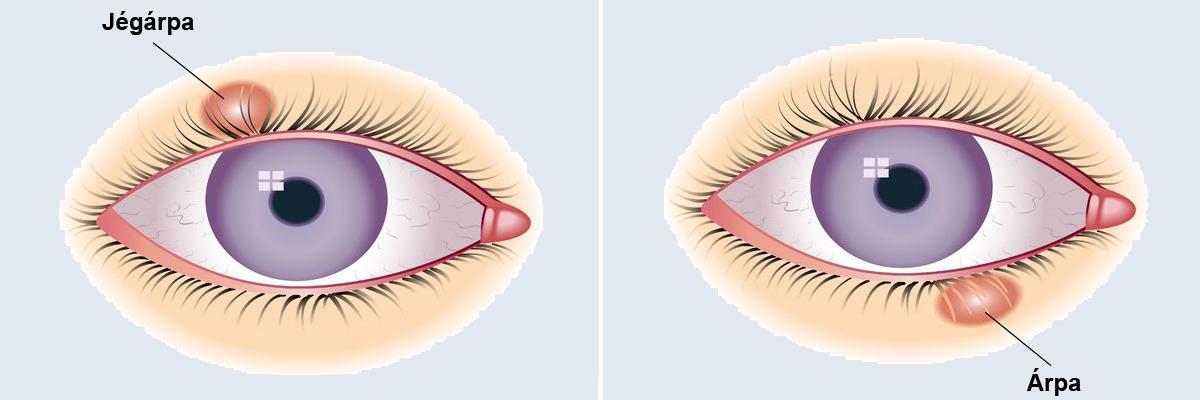Astigmia: a szem egyik fénytörési hibája