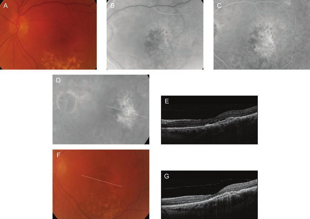 vaszkuláris genezis látás