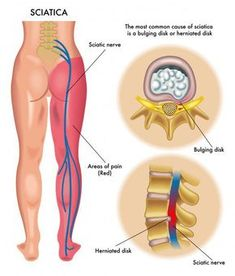 A kézenfekvő kezelés csökkentheti a hátfájást - Hírek -