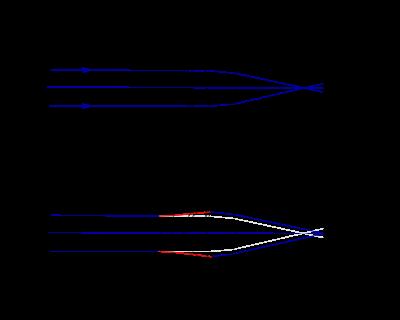 myopia fejlődésének mechanizmusa)