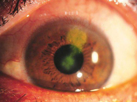 A szemfájdalmak gyakori okai - fájdalomportázonataxi.hu