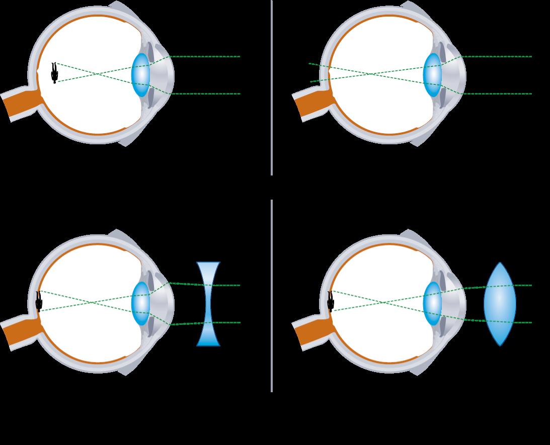 látássérült myopia hyperopia astigmatismus