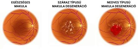 látás makula degenerációval