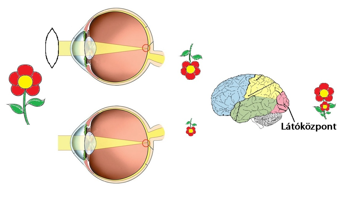 eltérő látás mindkét szemében)