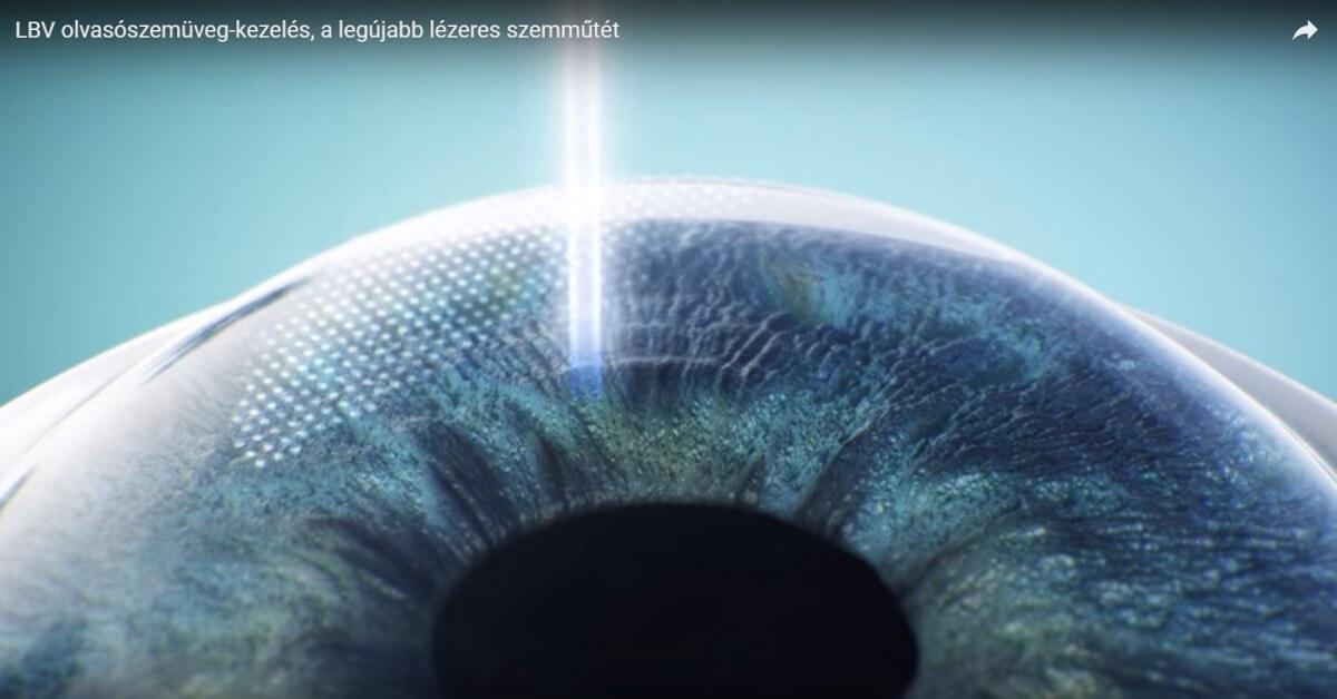 Lézeres látáskorrekció előnyei és hátrányai