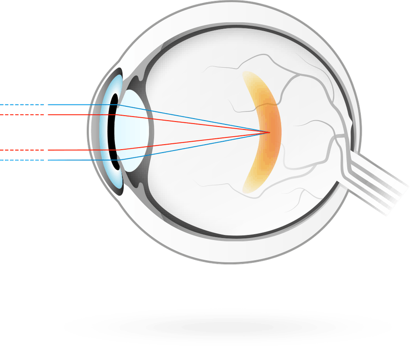ellenőrizze látását távollátásra