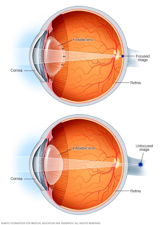 hyperopia és látásképzés