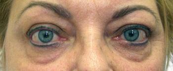 a bal szem látása romlik)