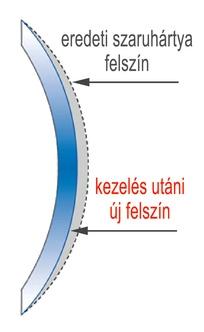 A korral járó látászavarok és tünetek | zonataxi.hu blog