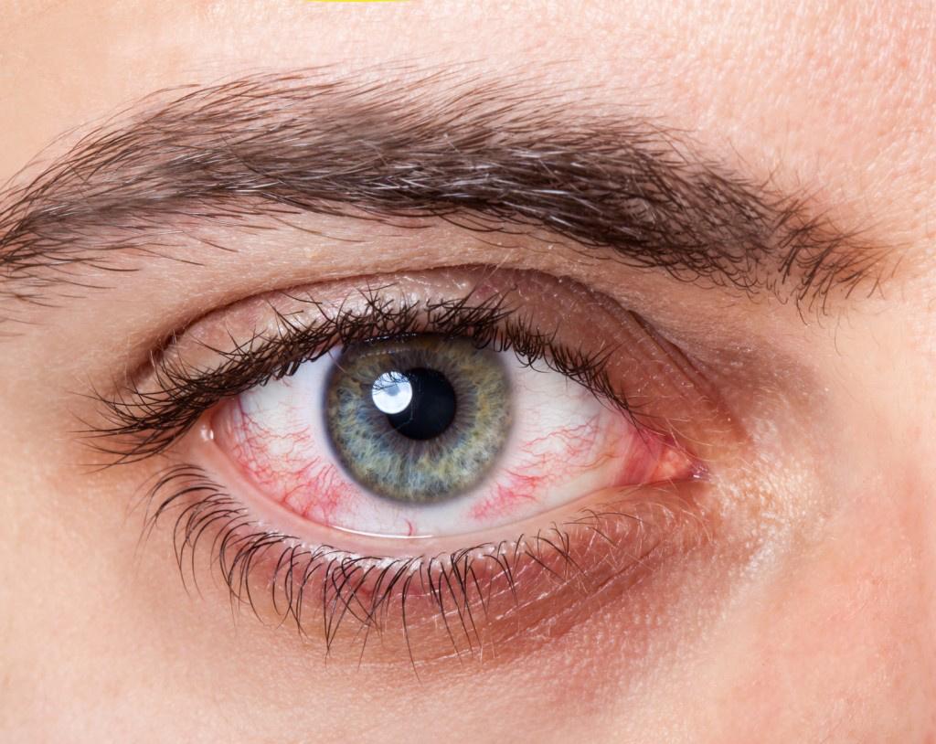 masszázs a szem betegségei ellen