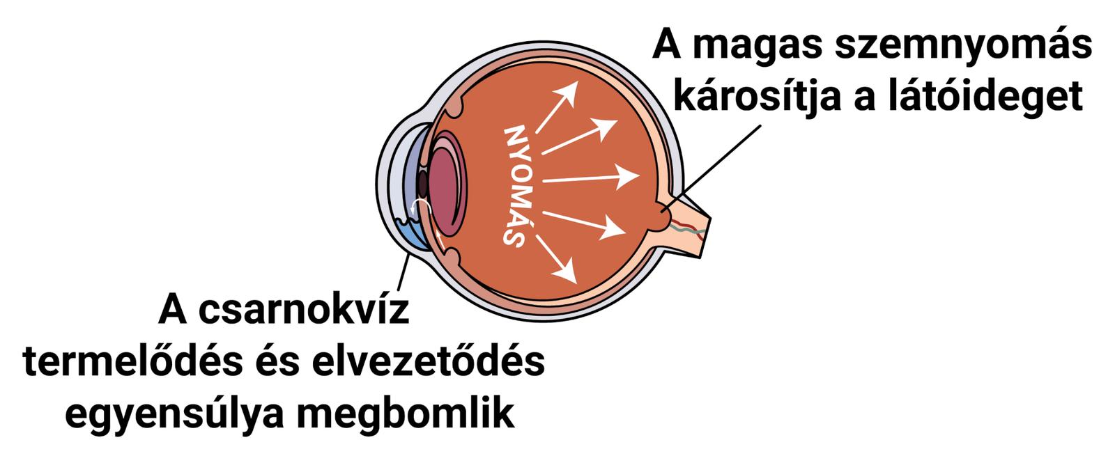magas rövidlátás és glaukóma