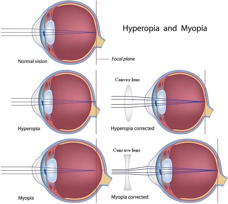 bonyolult myopia kezelés