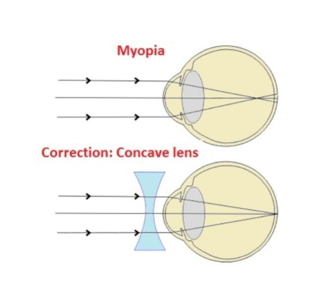 myopia eye diagram