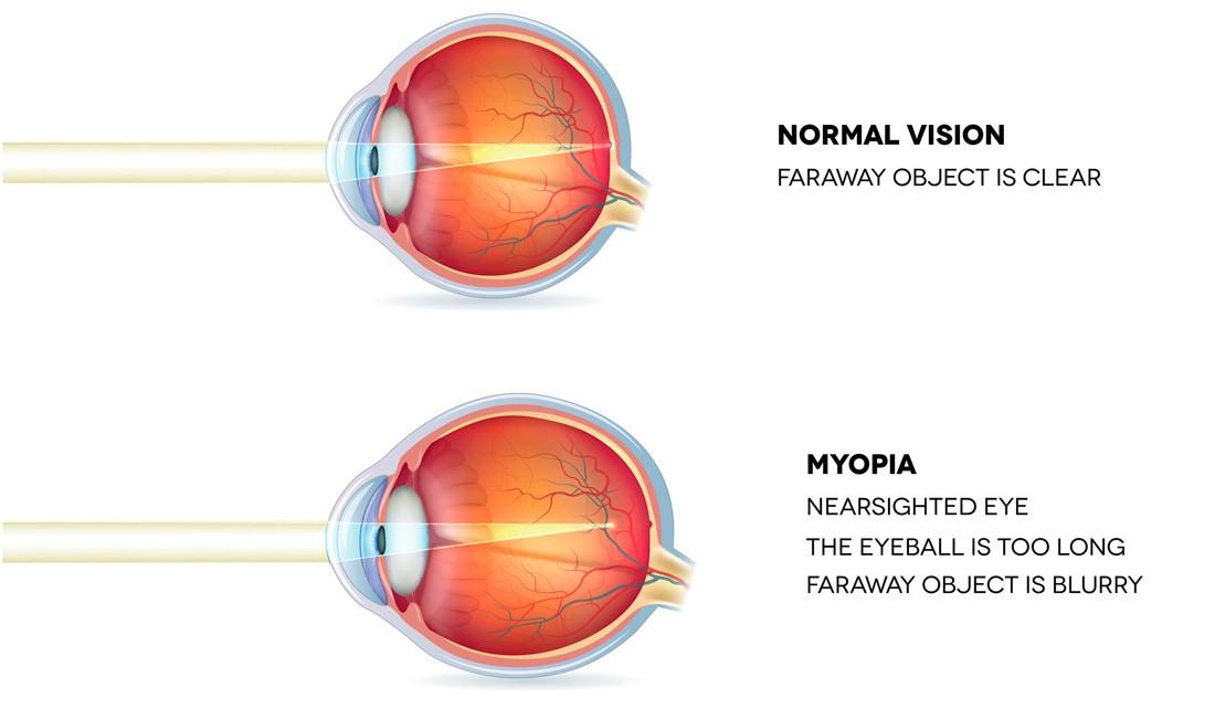 myopia lézer)