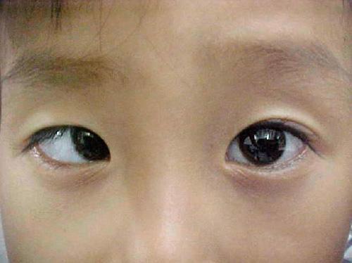 torna a szem számára a rövidlátás utál