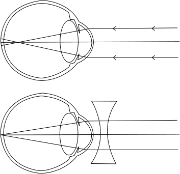 myopia látás mértéke