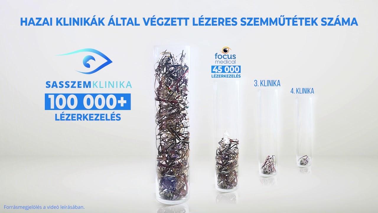 klinikák lézeres látáskorrekcióhoz magadanban)