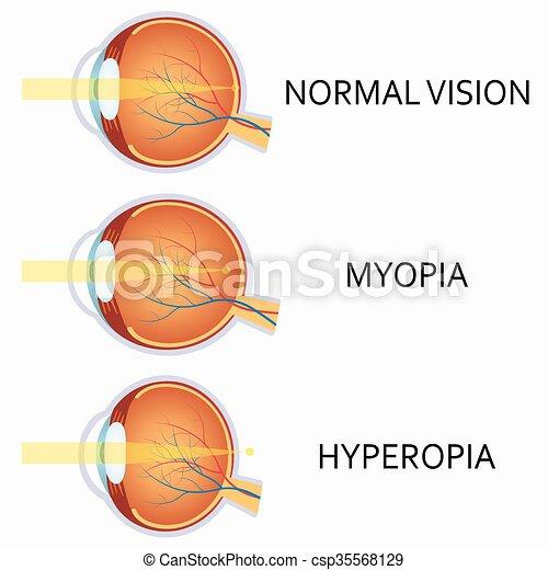 látási problémák: hyperopia)