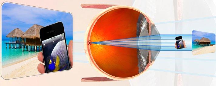 hogyan korrigálják a látást
