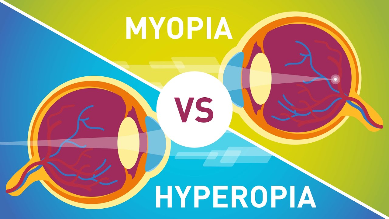 myopia és hyperopia betegség látás mínusz 19